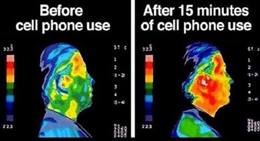 Head Before and After Microwaves (Cell Phone)