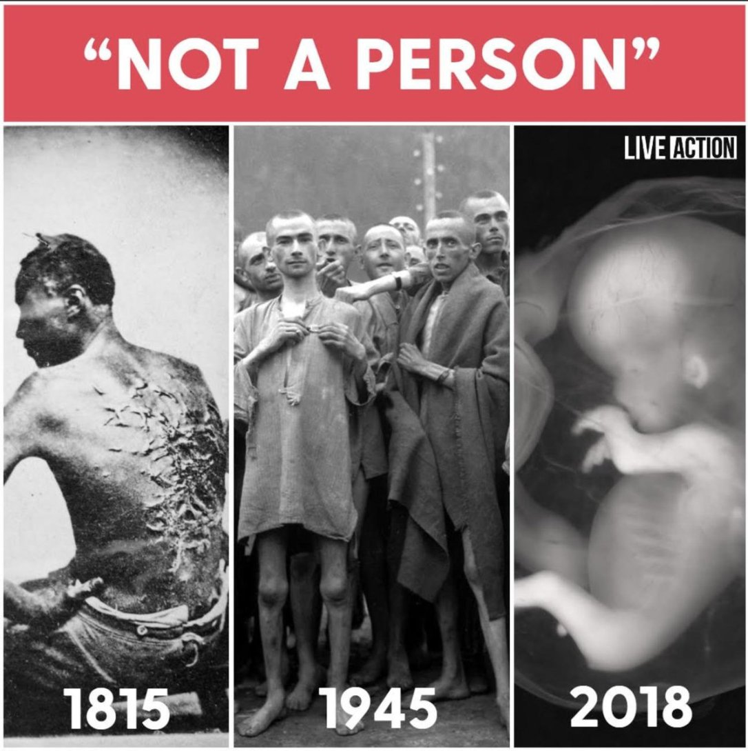 Planned Parenthood Not A Person